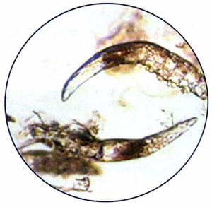 микроскопические паразиты живущие на человеке
